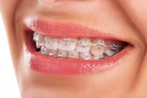 apparecchio-denti1