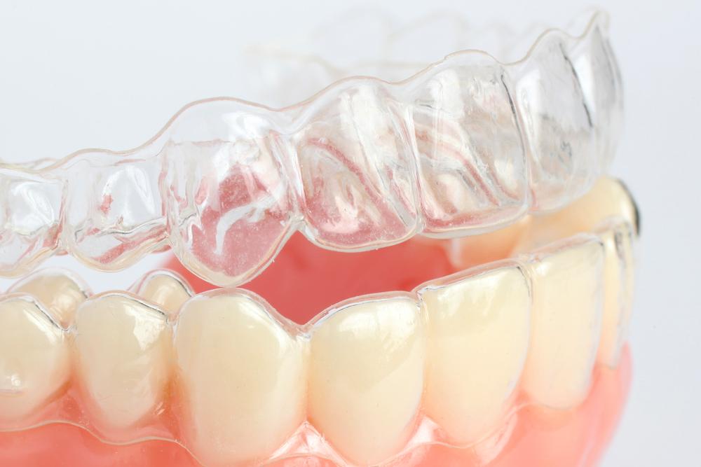 ortodonzia_invisibile_2